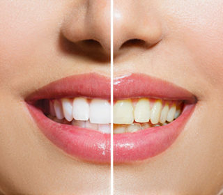 http://doverdentalcenter.com/wp-content/uploads/2015/11/teeth-whitening-320x280.jpg